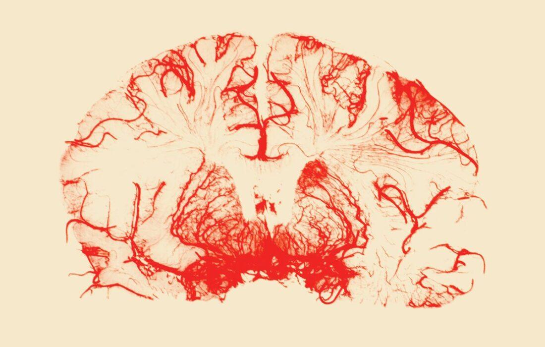 مهمترین و قدرتمندترین عادتهایی که مانع از آلزایمر میشود